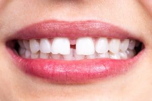 Diastema between tooth. Spacing between front teeth