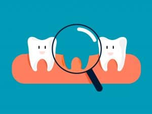 Fun concept about missing tooth. Looking for a tooth with a magnifying glass . Cartoon style. Vector illustration design.