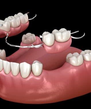 Removable partial denture, mandibular prosthesis. Medically accurate 3D illustration of prosthodontics concept