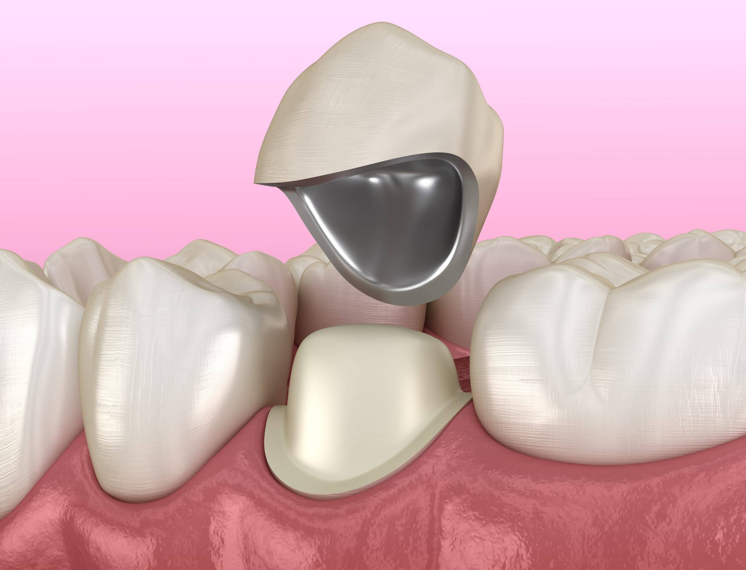 Preparated premolar tooth and dental metal-ceramic crown. Medically accurate 3D illustration