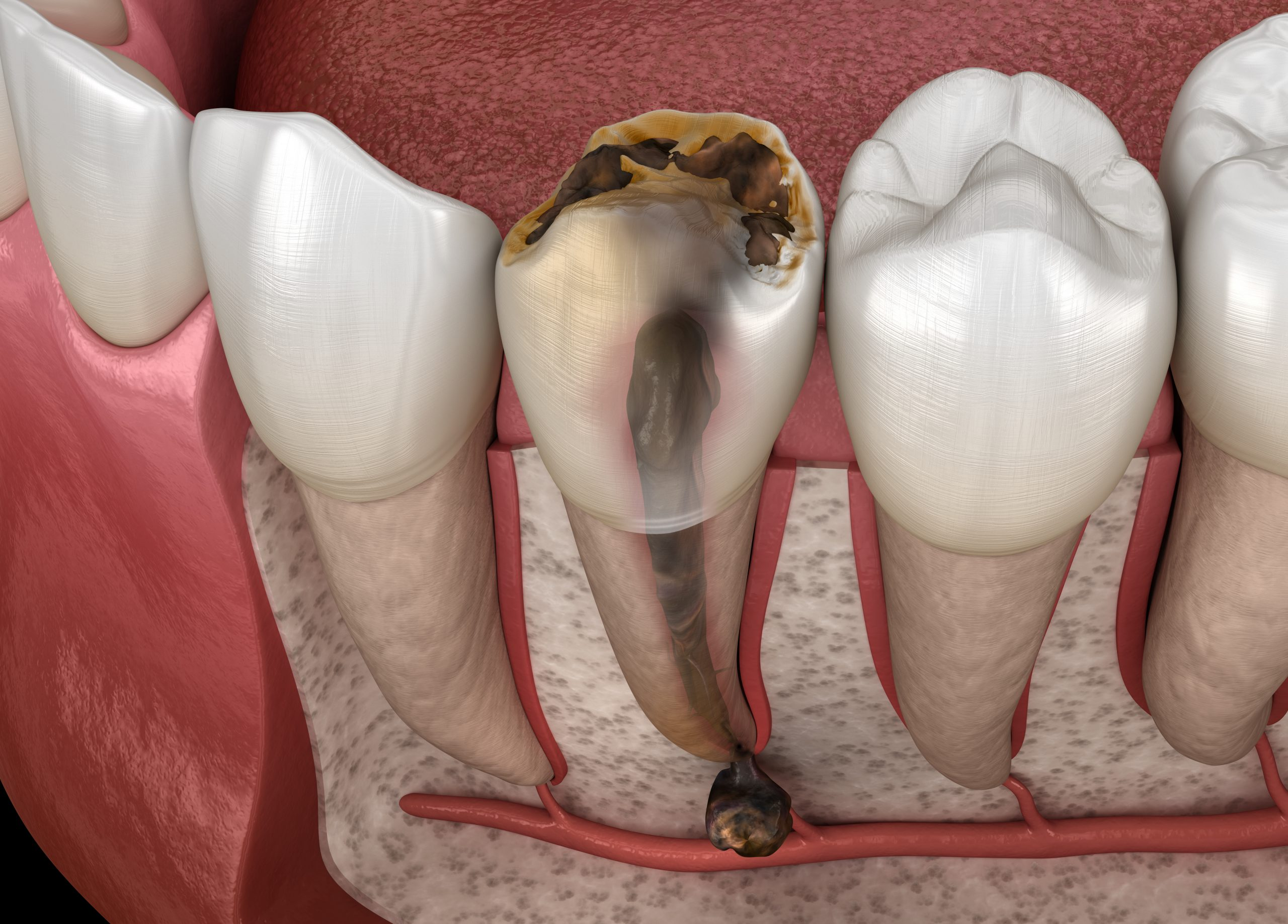 Periostitis tooth - Lump on Gum Above Tooth. Medically accurate dental 3D illustration