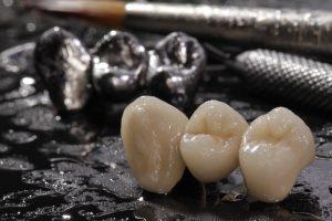 Macro E-max pressed ceramic bridge and metal crown with dentistry utensils