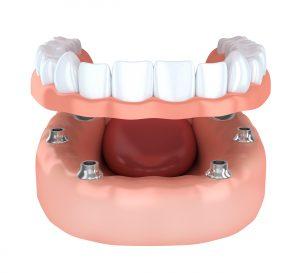 Tooth humman implantation, denture (done in 3d rendering)