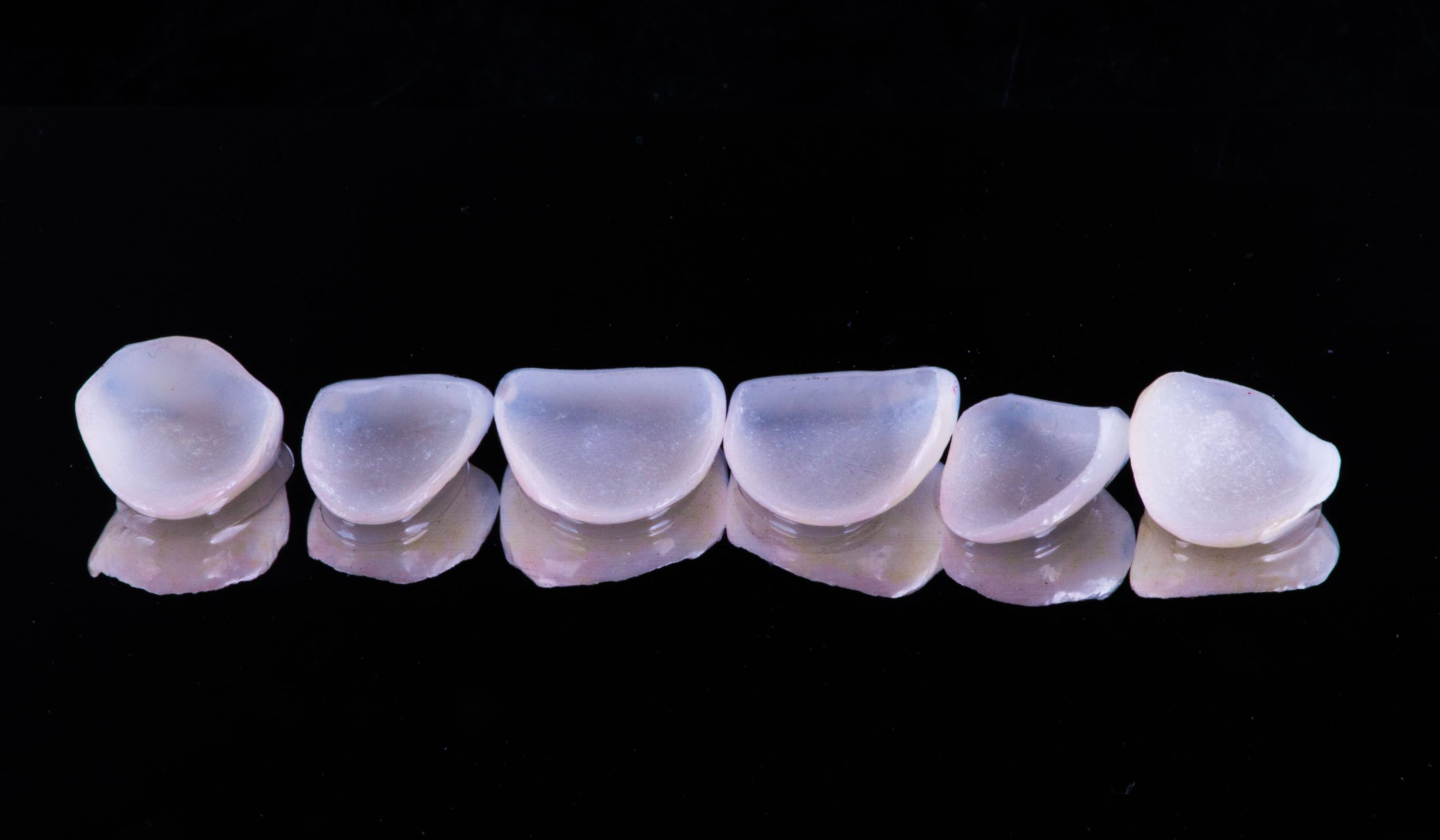dental crowns and veneers