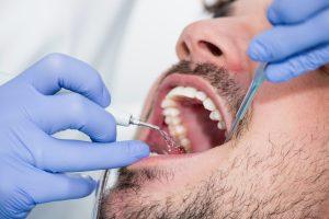 Plaque removal procedure