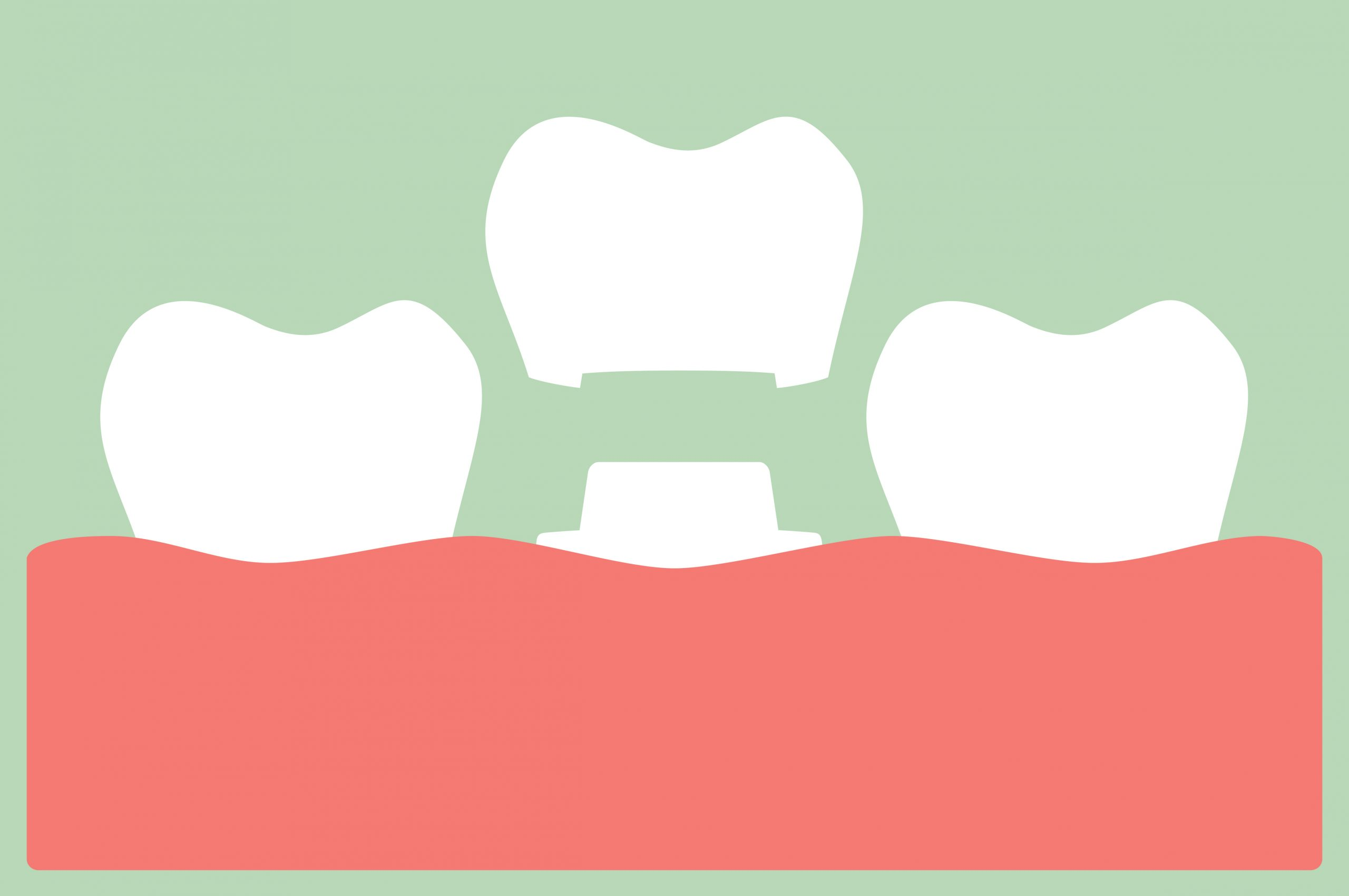 dental crown, installation process and change of teeth - tooth cartoon vector flat style cute character for design