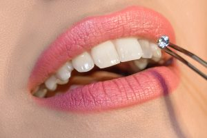 Dentist doctor select a gem or rhinestone for the patient's teeth, Mouth close up