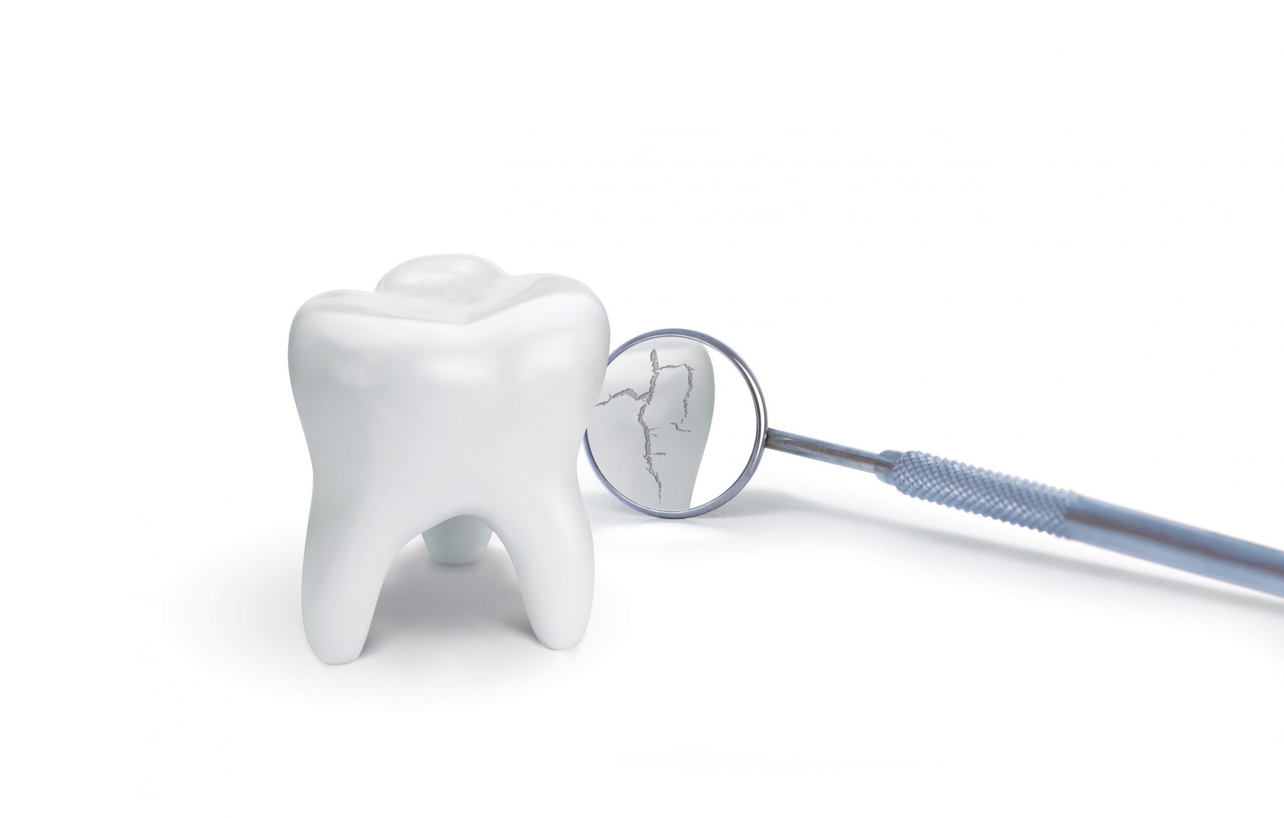 Broken tooth with dental mirror on white background. Creative idea