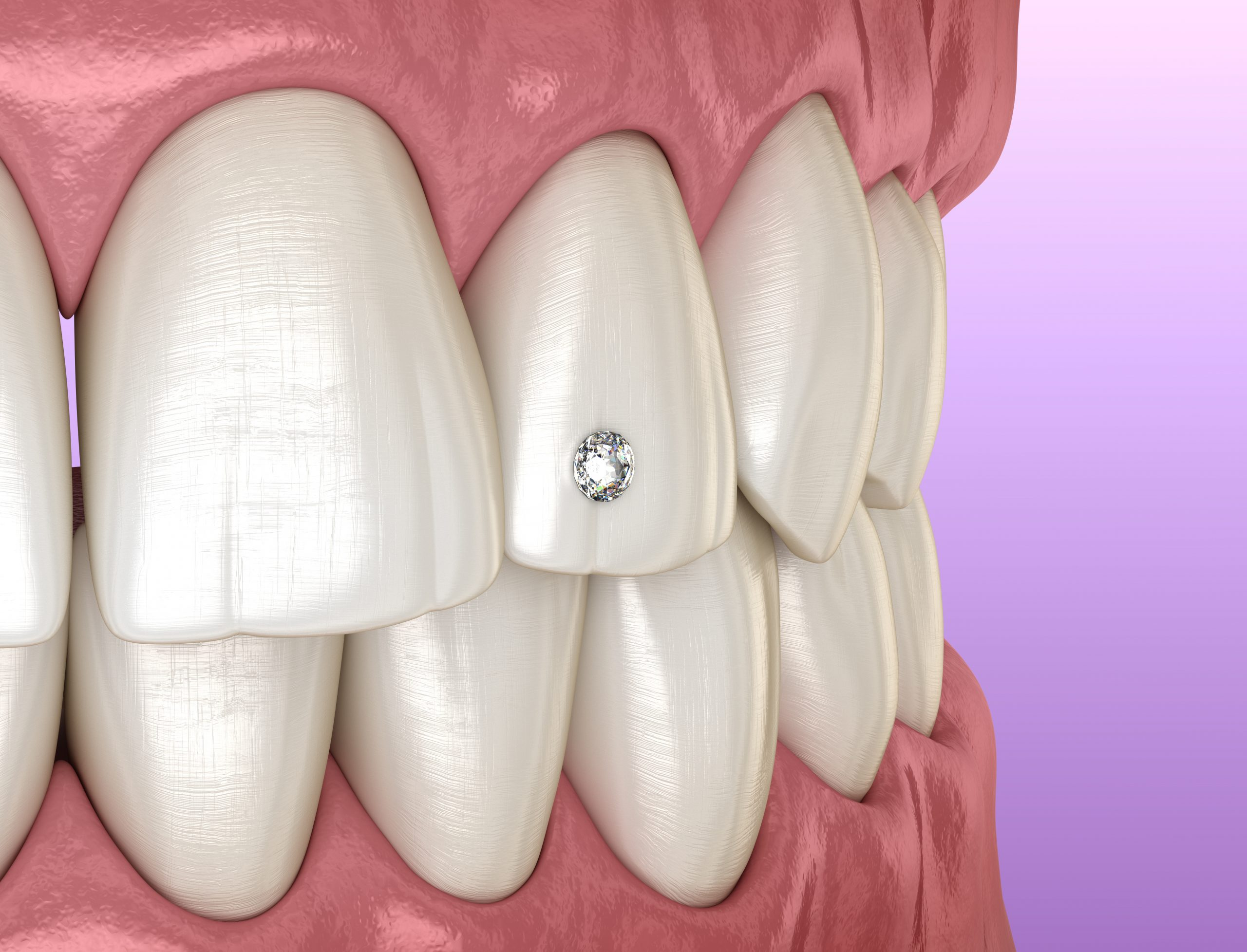 Tooth piercing by diamond, 3D illustration concept.