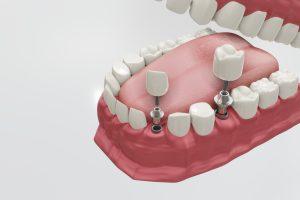 Dental Implants Treatment Procedure. Medically accurate 3D illustration dentures concept.