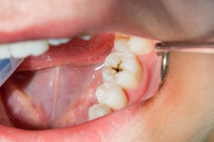 close-up of a human rotten carious tooth at the treatment stage in a dental clinic. The use of rubber dam system with latex scarves and metal clips, production of photopolymeric composite fillings