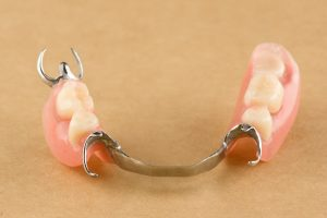 arc dental prosthesis lies on a wooden background