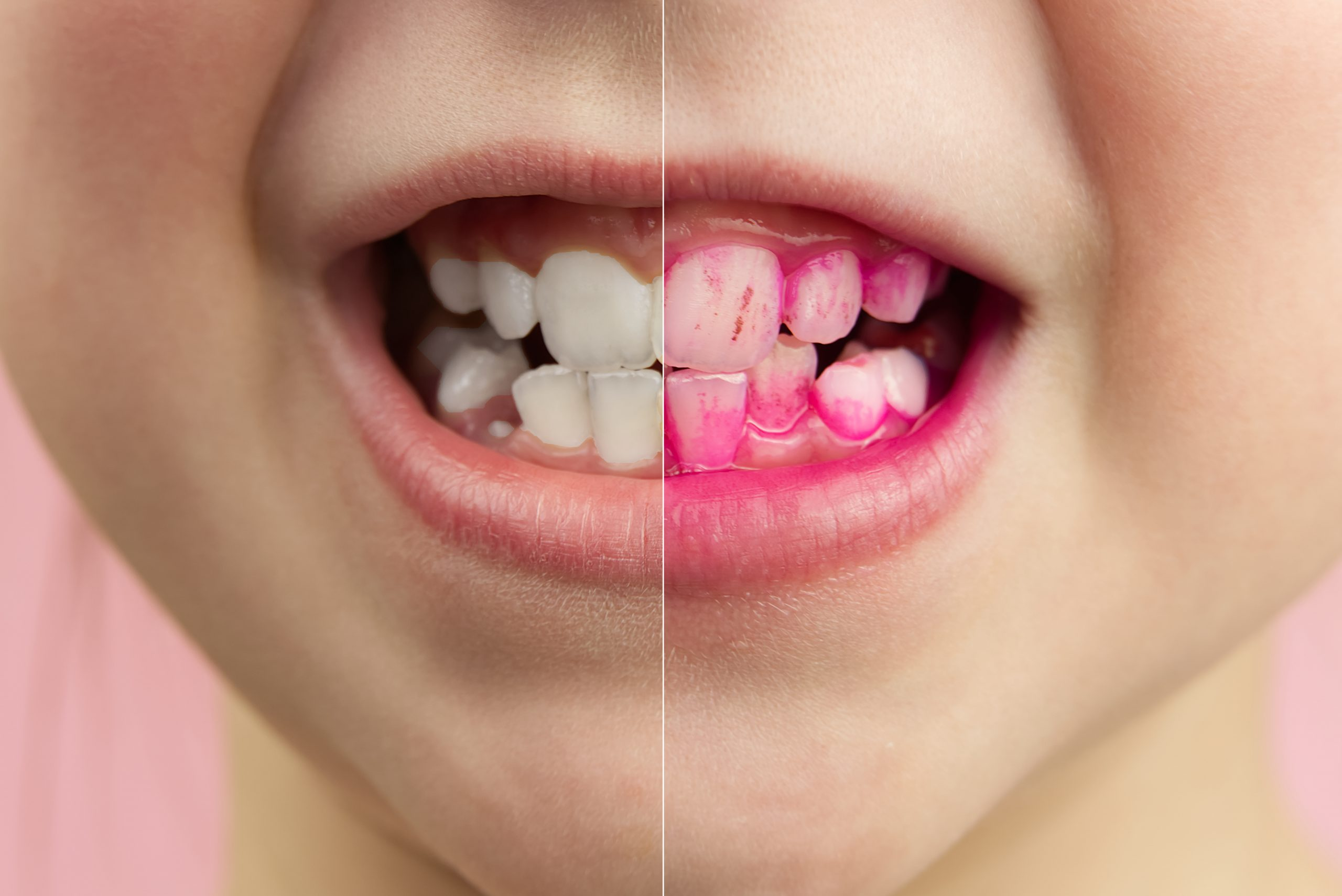 Plaque disclosing tablets in work. Before and after - effect. close up photo of young boy tooth. Dental plaque pill concept.