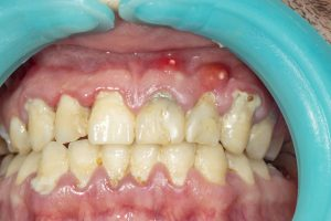 Human teeth closeup with dental plaque and inflammation of gingivitis. Concept of brushing teeth and poor hygiene