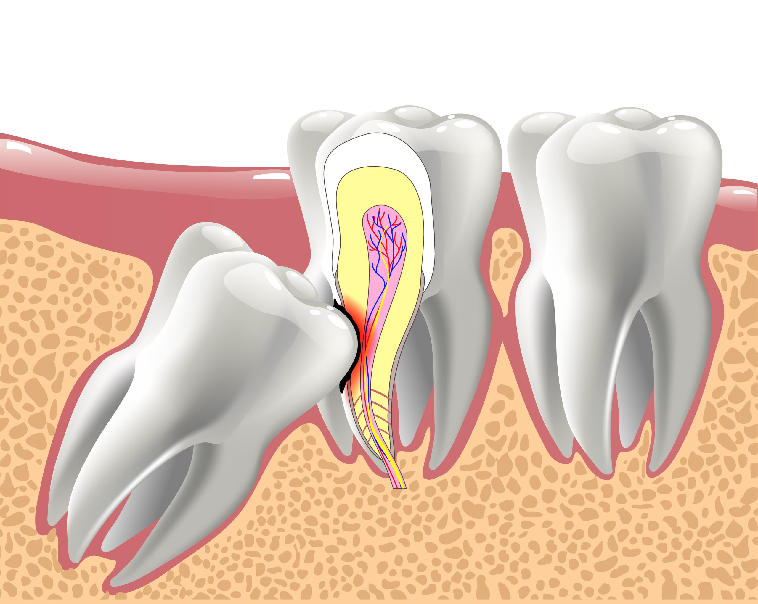 realistic 3D teeth, and wisdom tooth problems, oral anatomy